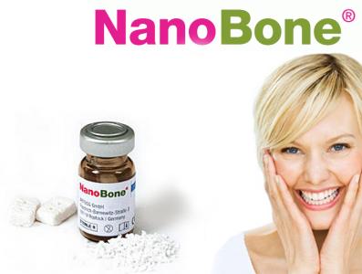 Nanobone Sostituto osseo - Materiali rigenerativi