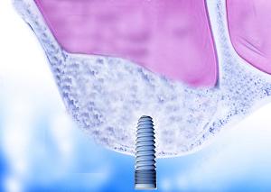 Osso de paziente e impianto dentale
